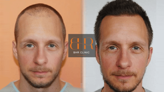 FUE Surgery Before & After