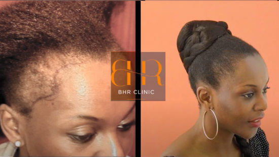 FUE Surgery Before & After Lady