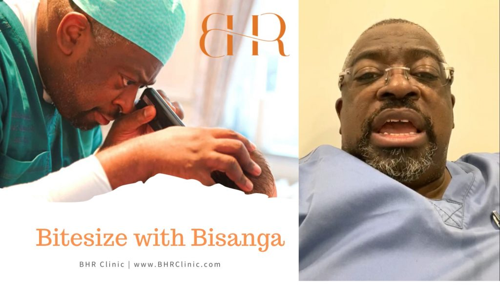 Bitesize with Bisanga: Age Limit for Hair Transplant