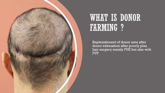 Donor Farming in FUE - Dr. Christian Bisanga